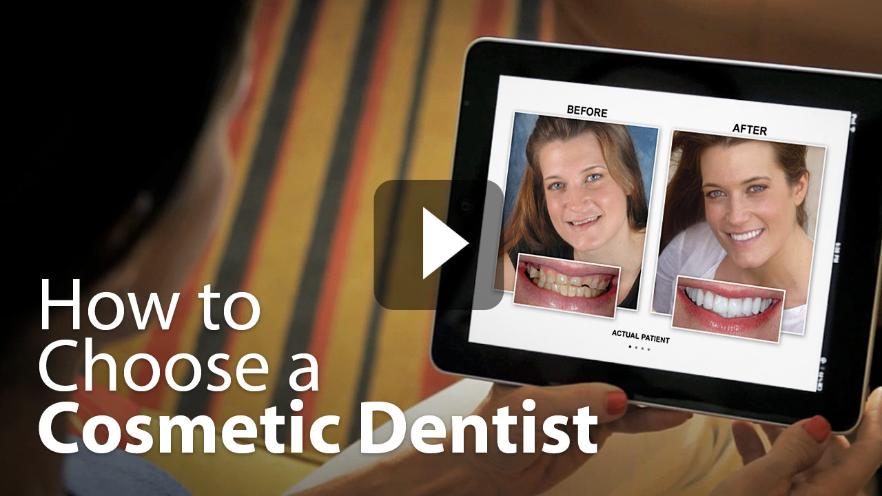 Choosing a Cosmetic Dentist